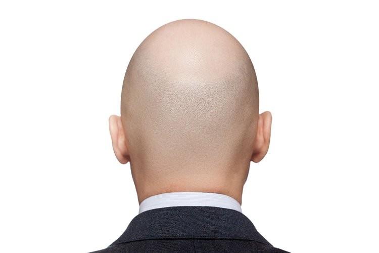 Alopecia Areata - Procedimentos Capilares