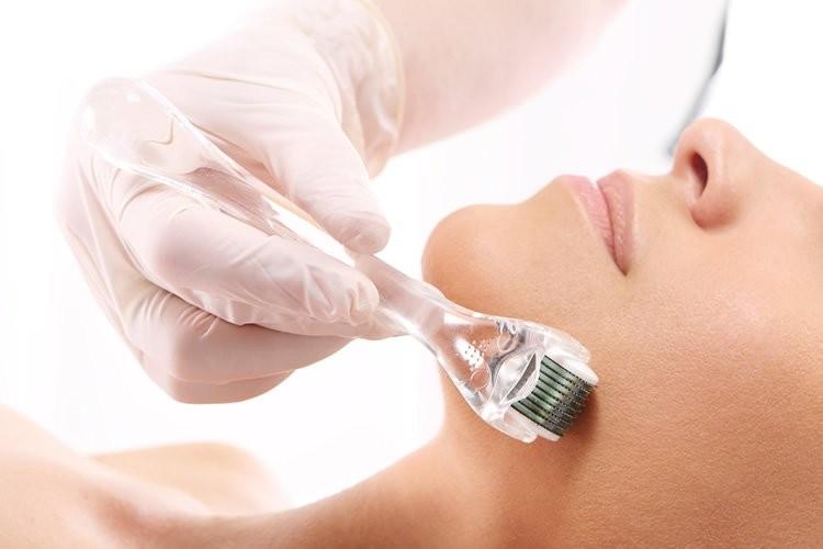 Microagulhamento - Procedimentos estéticos